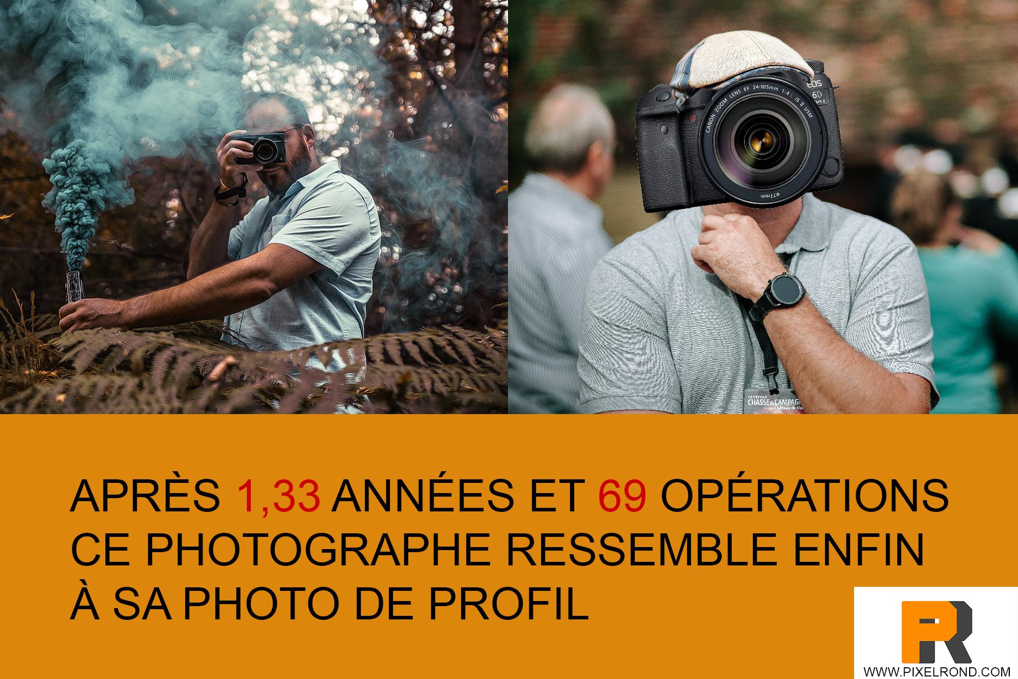 Après 69 opérations ce photographe ressemble...